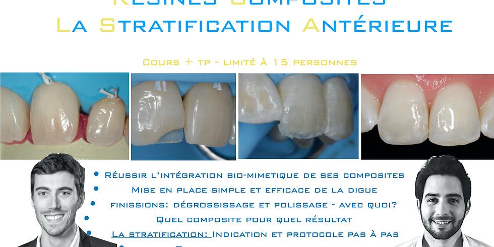 Stratification antérieure: composite direct