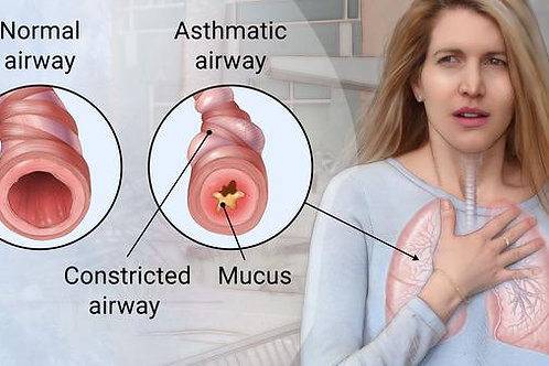 Asthma Homeopathic  Remedy
