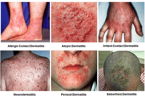 Dermatitis  Therapy Kit