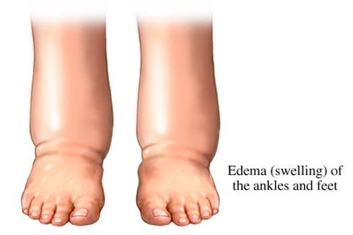 Edema Homeopathic Remedy