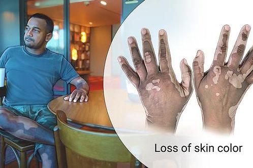 Vitiligo Salve