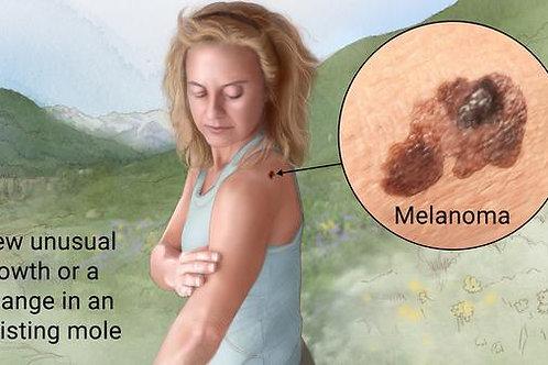 Melanoma (Skin Cancer) Sound Wave Session