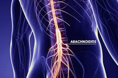 Arachnoiditis Sound Wave Session