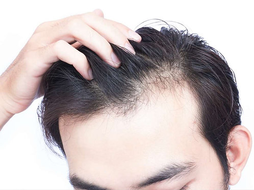 Hair Loss Hair Kit
