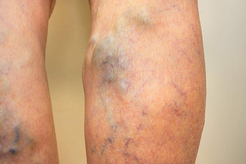 Varicose Veins  Homeopathic Remedy