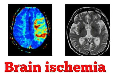 Cerebral Ischemia Sound Wave Frequency