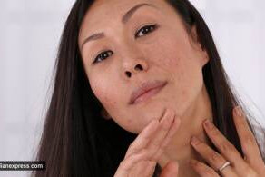 Tips for getting rid of acne scars