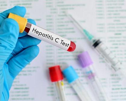 hepatitis-c-screening-recommended-for-ba