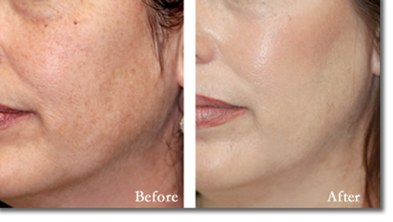chemical-peel-before-and-after-3.png