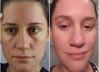 My face before and after acupuncture for facial psoriasis