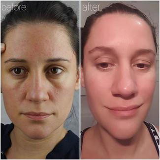 Facial Psoriosis