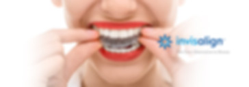 Invisalign offer teeth straightening with nearly invisible braces. Get a confident smile that can change everything with Invisalign treatment today at Marford Road Dental