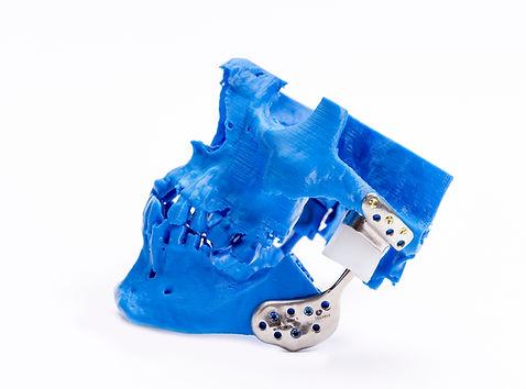 TMJ custom prosthesis