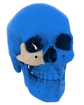 patient-specific-implant-of-zygoma