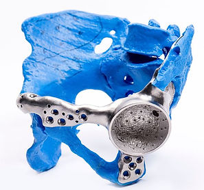 Patient-Specific-Orthopedic-Implants