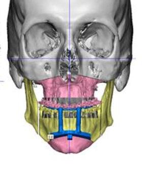 Ortho Pic.JPG