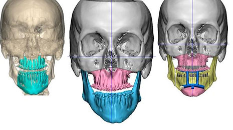 virtual-3D-plan-for-Orthognatic-surgery