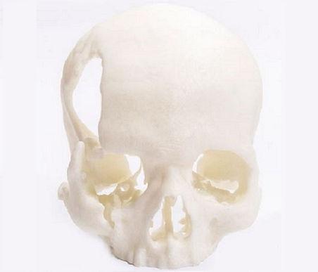 3D printed anatomical skull model
