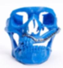 maxill 1.JPG