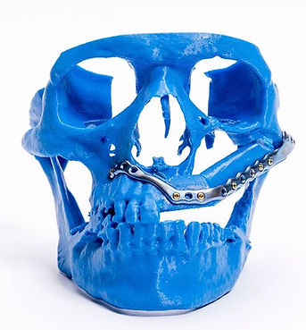 Patient-specific-implants-for-maxillofacial-defects