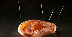 "What is Ear Acupuncture? | ""Auricular Therapy"" Explained"