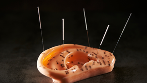 """What is Ear Acupuncture?   """"Auricular Therapy"""" Explained"""