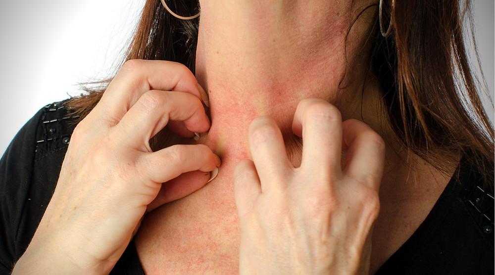 alergia a las joyas y bisuteria