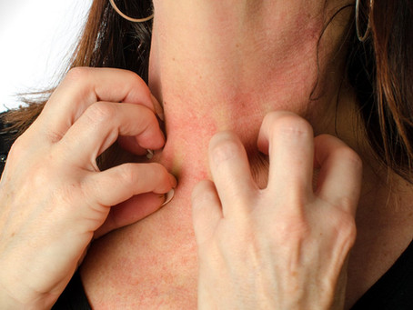 Como evitar la alergia a las joyas