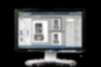 LIMB Image Processing Script