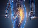 strengthen-bone-health1.jpg