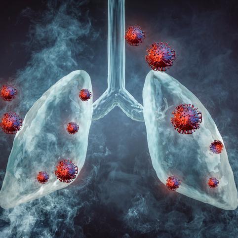 Estudo descreve dois diferentes padrões de dano no pulmão de vítimas da COVID-19