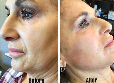 Am I Good Candidate for Face Thread Lift?