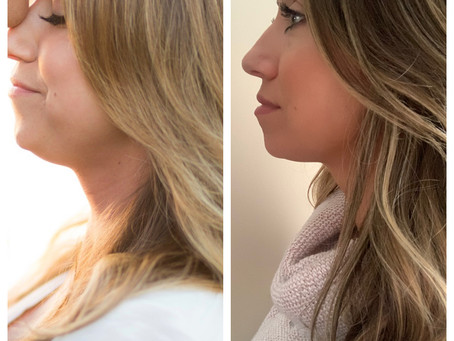 Looking for that chiseled chin?