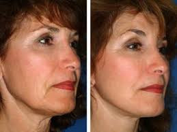 How does a Face Thread Lift work?