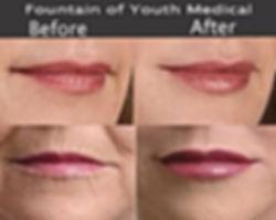 smoke lips.jpg