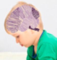 Neurologia infntil e do adolescente Itajaí