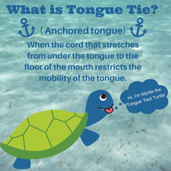 What is Tongue Tie.jpg