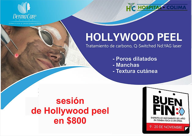 Copia de Hollywood peel en colima 2.jpg