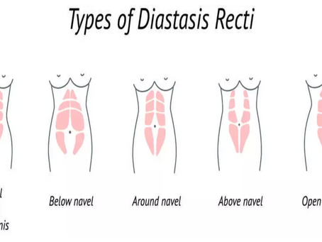 Diastasis Recti: 3 effective and simple ways to improve your ab separation