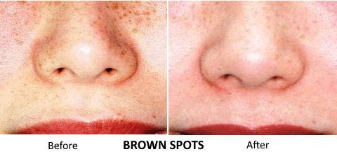 PicoSure - BrownSpots.jpg