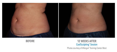 CoolSculpting before and after #1.jpg