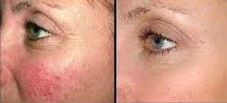 Cutera Laser Genesis Before After