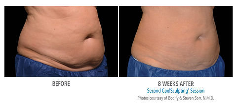 CoolSculpting before and after #2.jpg