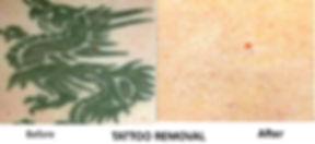 PicoSure - Tattoo Removal.jpg