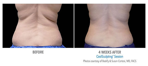 CoolSculpting before and after #4.jpg