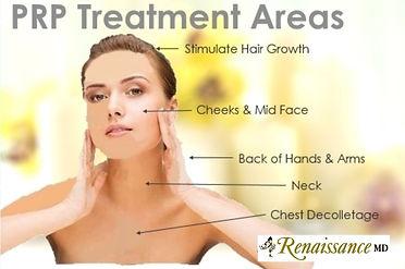 PRP Treatment-Renaissance.jpg