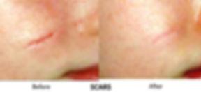 PicoSure - Scars.jpg