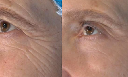 Vivace Micro-Needling before and after photo