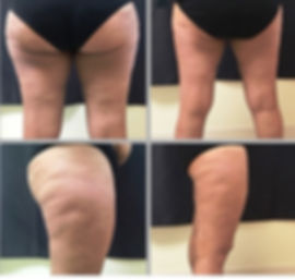 SculpSure Before & After Pictures