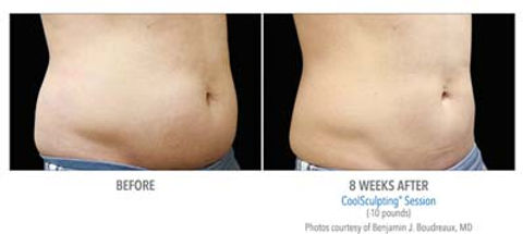 CoolSculpting before and after #3.jpg